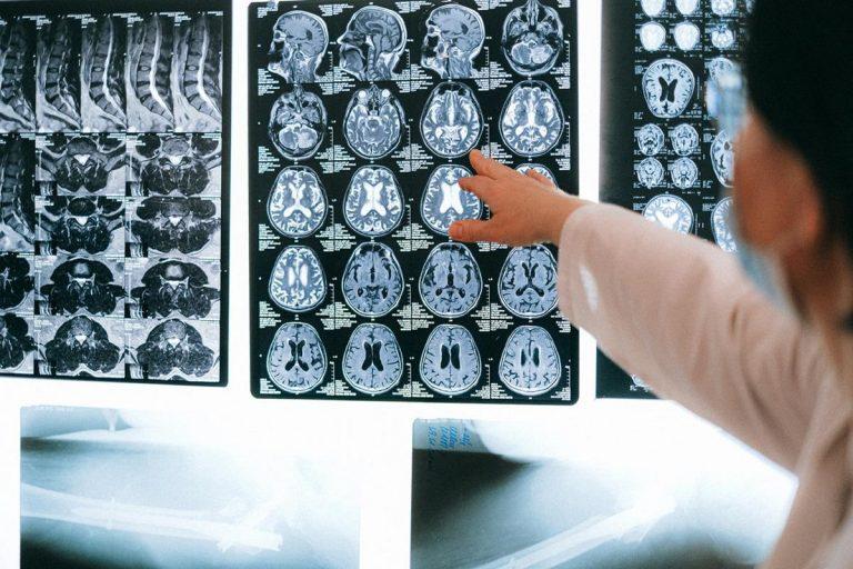 Czy badanie rezonansem magnetycznym może być błędne?